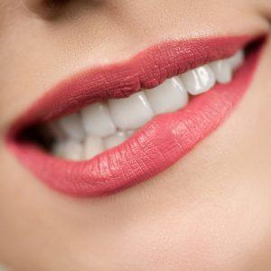 Linea Denti